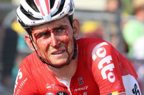 http://www.cyclingnews.com/news/benoot-out-of-amstel-with-collarbone-break-after-car-collision-at-paris-roubaix/